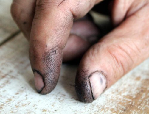 Schmutzige Nägel sind ein Schmuddel-Indiz – Ist das wirklich so?
