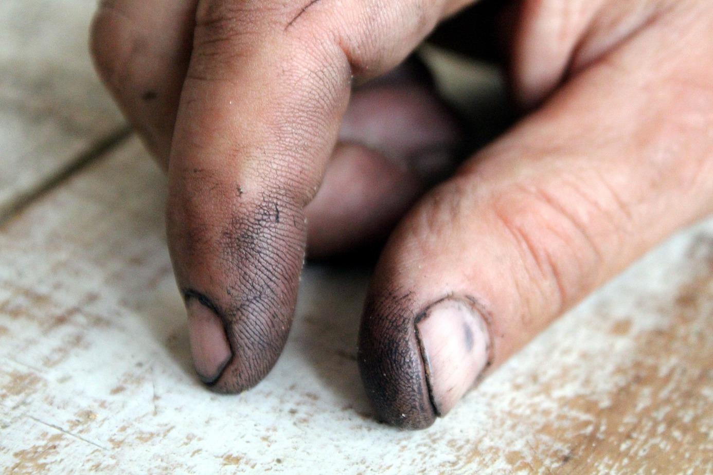 """Ein Bild des Grauens: Dreckige Finger(nägel). Wenn man ohne Handschuhe im Garten wühlt, ist es na-türlich klar, dass die Hände so aussehen. Aber warum sammelt sich eigentlich bei manchen Menschen ständig Schmutz unter den Nägeln an, selbst wenn sie nichts """"Dreckiges"""" getan haben? Foto: Ulrike Mai/pixabay.com"""